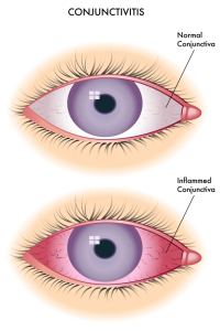 Diagram of Pink Eye